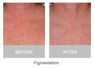 Before and after IPL Treatments in Bristol, Intense Pulse Light therapy