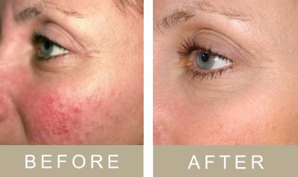 Before and after Bristol's Non surgical facelift – the lunchtime QuickLift