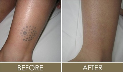 Before and after Laser tattoo removal clinic in Bristol – advanced technology