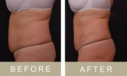 Before and after Non-Surgical Body Contouring and inch-loss