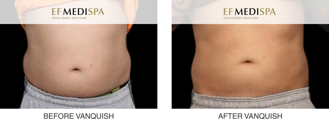 Before and after Reduce by Vanquish