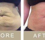 The 3D Lift from Ultraformer before and after