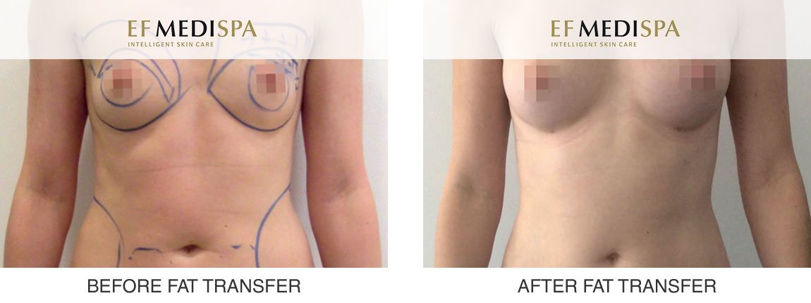 Before and after Fat Transfer to Breasts