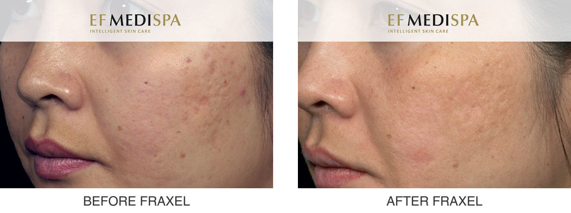 Before and after Fraxel Laser Treatments