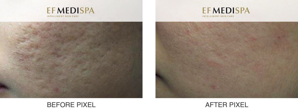 Before and after Pixel Laser Treatment