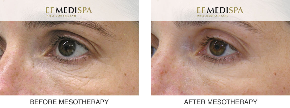 Before and after Mesotherapy