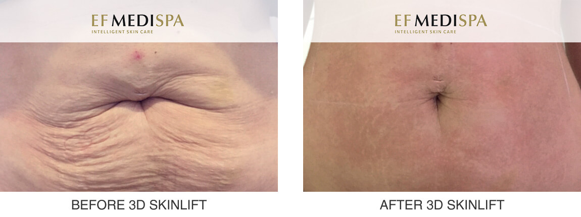 Before and after 3D SkinLift by Ultraformer