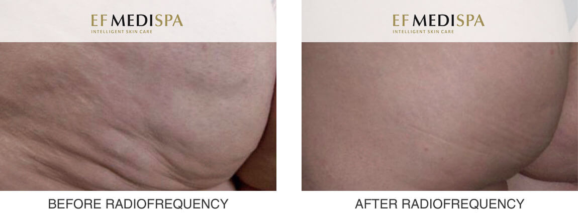 Before and after Radiofrequency