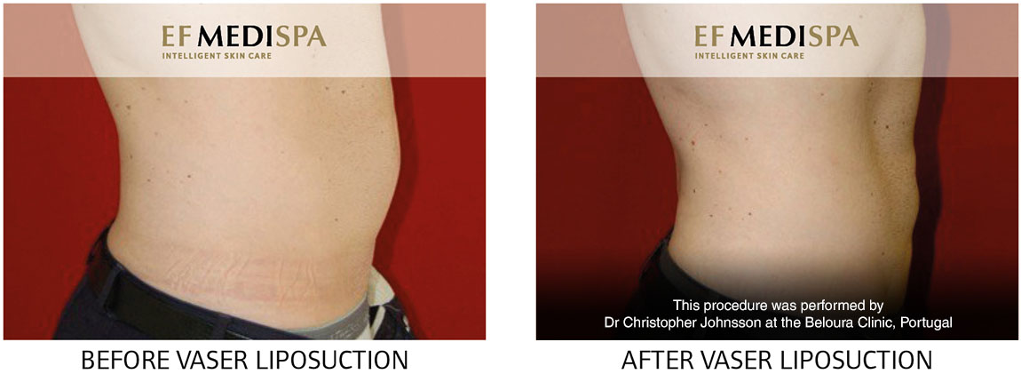 Before and after Vaser Liposuction