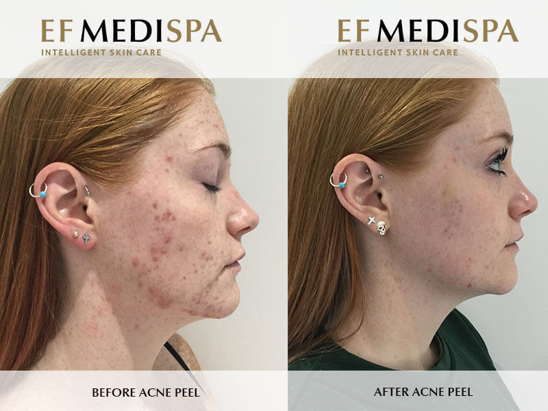 Before and after Professional Facials & Peels in Birmingham