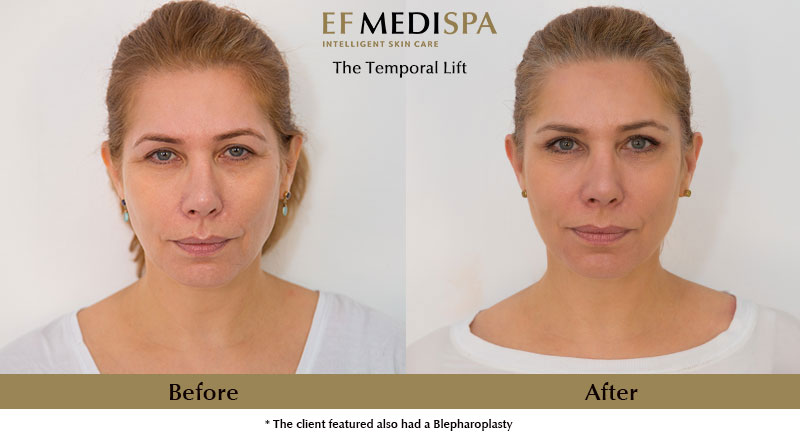 Before and after Temporal Lift