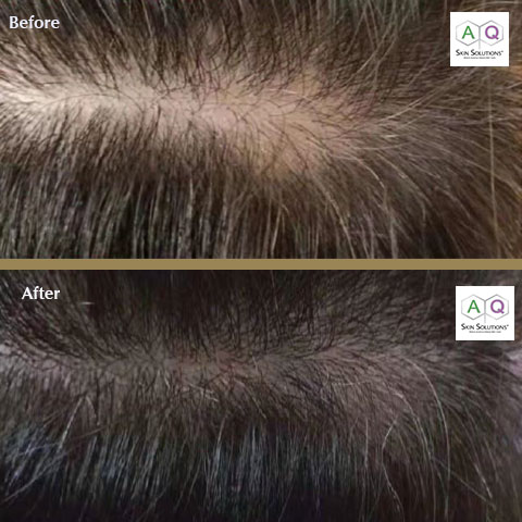 Before and after Dermastamp with Advanced Hair Complex+ | EFMedispa
